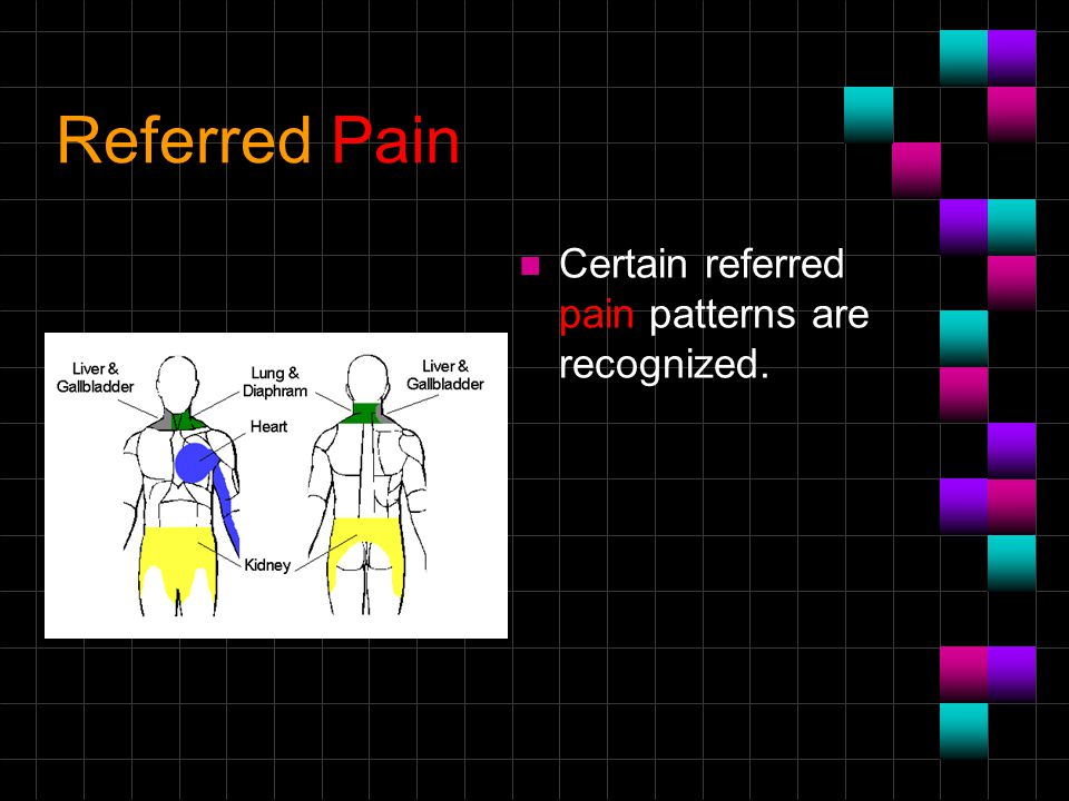 Referred Pain Certain referred pain patterns are recognized.