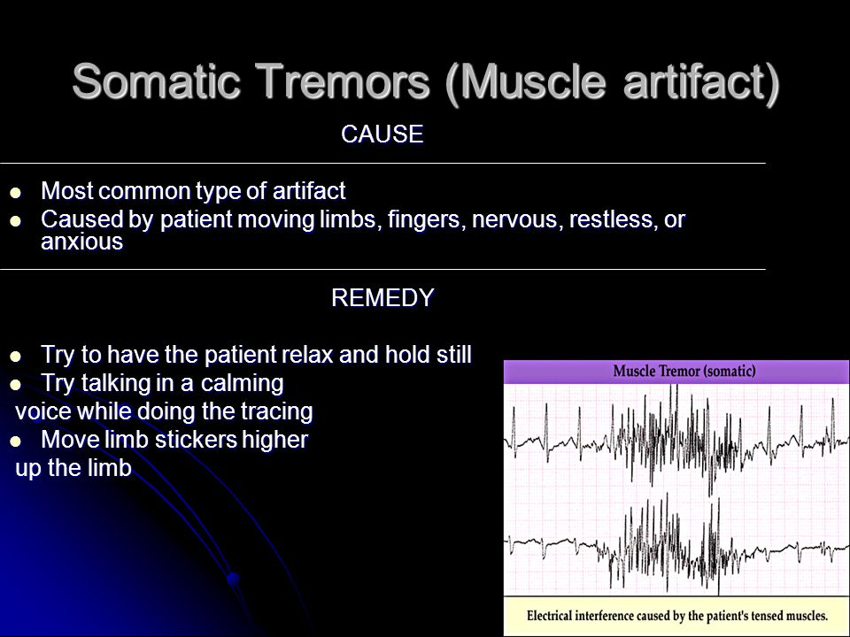 Somatic Tremors (Muscle artifact)