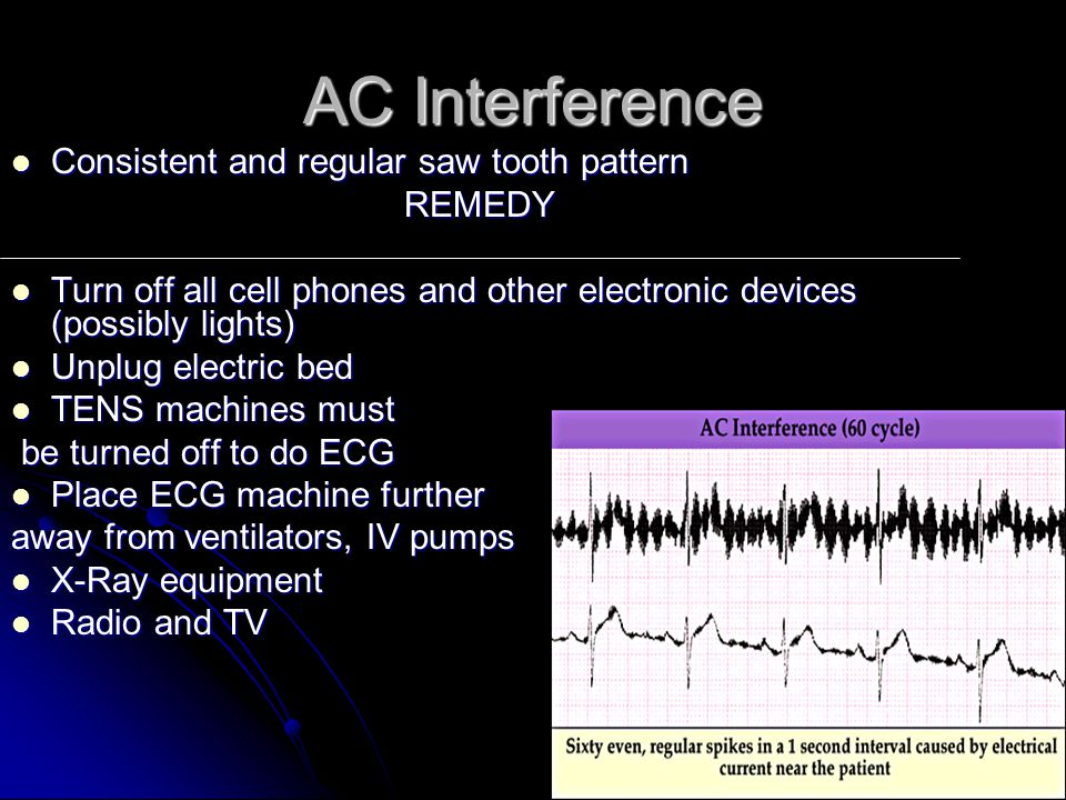 AC Interference Consistent and regular saw tooth pattern REMEDY