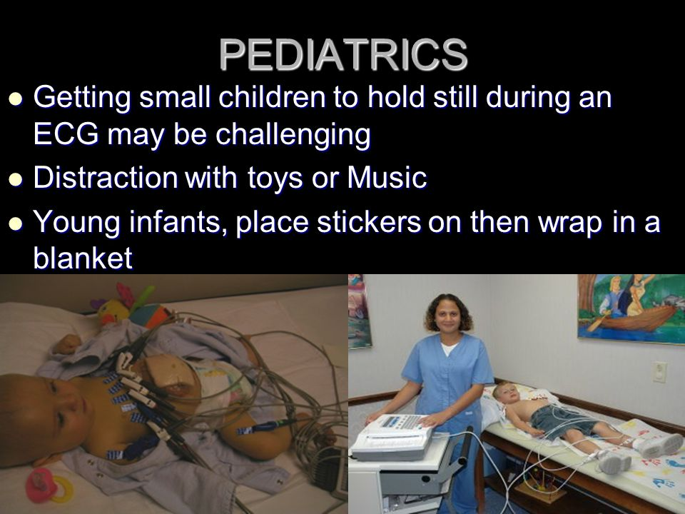 PEDIATRICS Getting small children to hold still during an ECG may be challenging. Distraction with toys or Music.