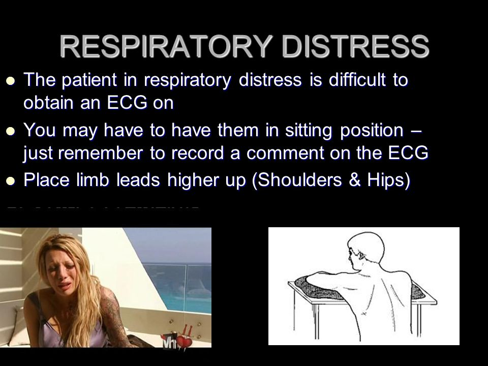 RESPIRATORY DISTRESS The patient in respiratory distress is difficult to obtain an ECG on.