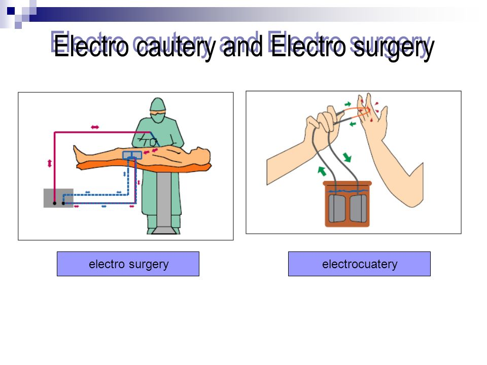 Electro cautery and Electro surgery