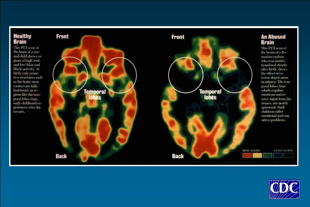 This slide shows positron emission tomography (PET) scan graphics of the temporal lobes in a healthy and abused brain.