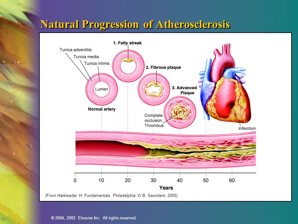 Natural Progression of Atherosclerosis