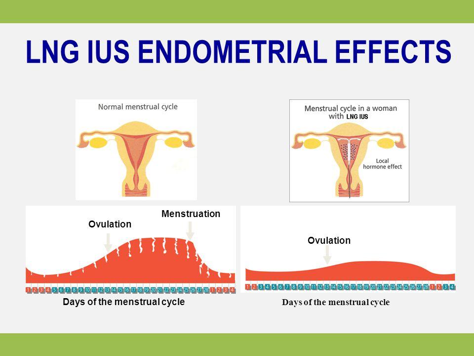 LNG IUS ENDOMETRIAL EFFECTS