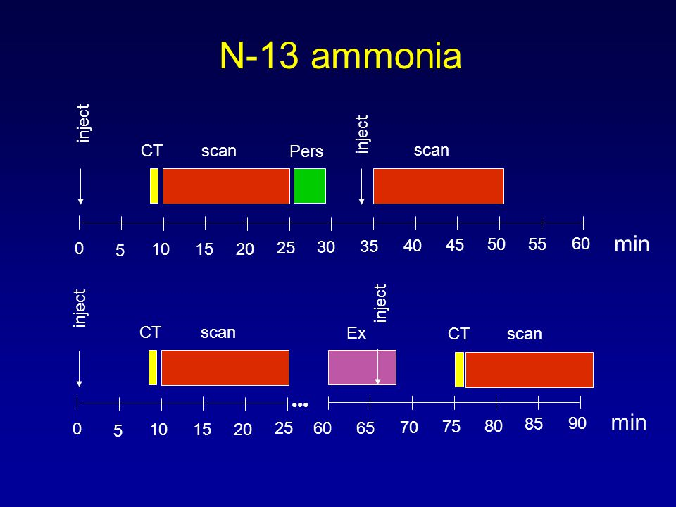 N-13 ammonia min 5 10 15 20 25 30 35 40 45 50 55 60 inject scan Pers