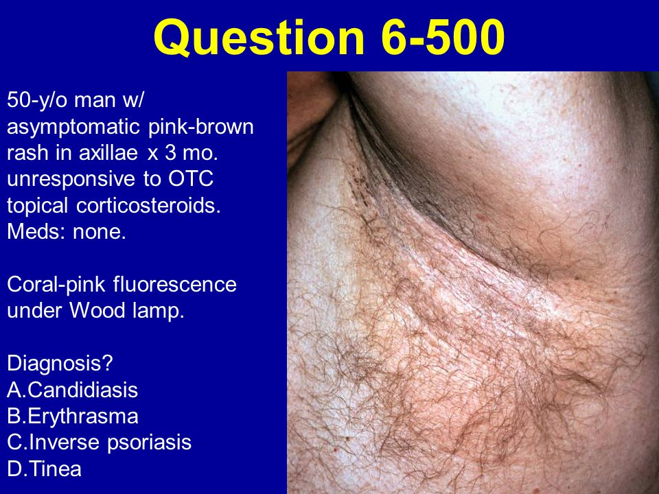 Question 6-500 50-y/o man w/ asymptomatic pink-brown rash in axillae x 3 mo. unresponsive to OTC topical corticosteroids.