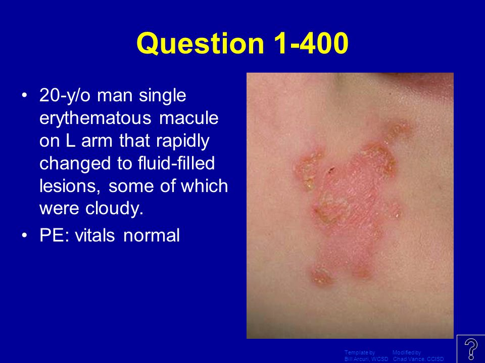 Question 1-400 20-y/o man single erythematous macule on L arm that rapidly changed to fluid-filled lesions, some of which were cloudy.