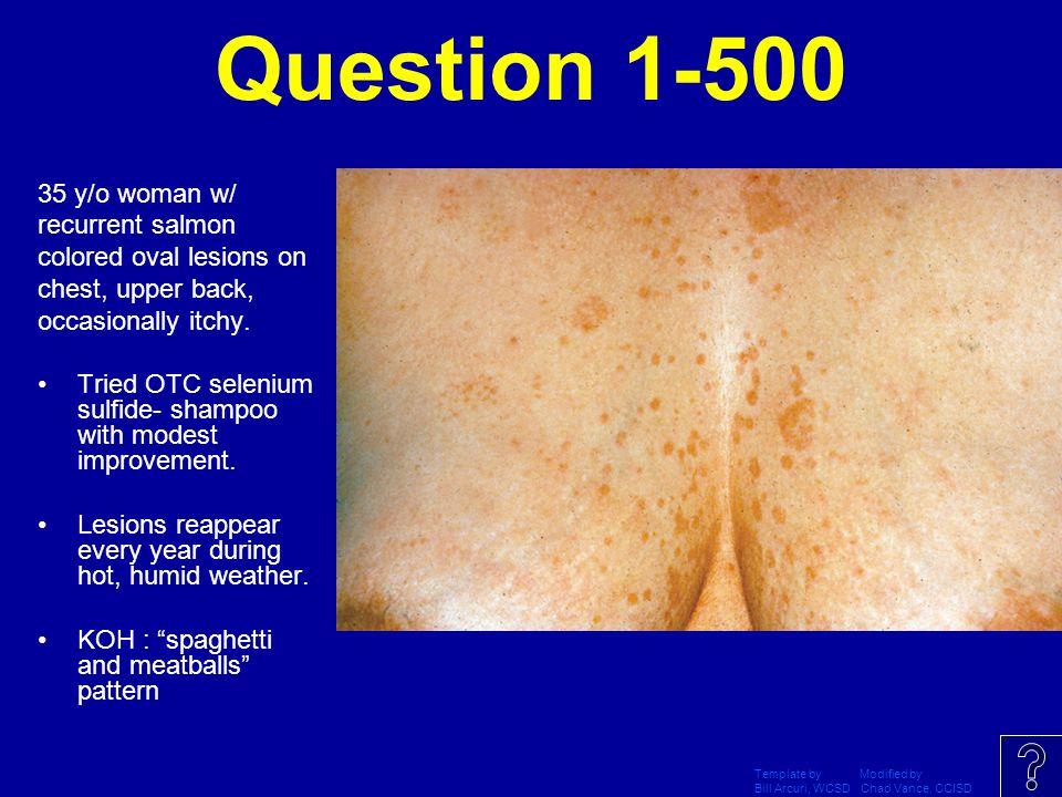 Question 1-500 35 y/o woman w/ recurrent salmon