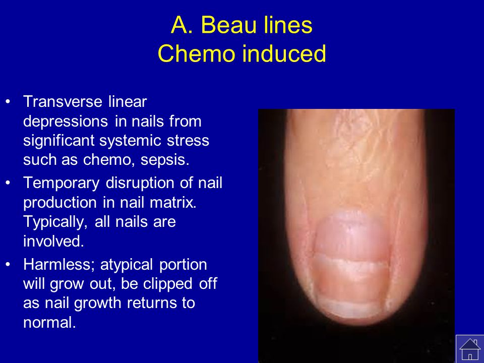 A. Beau lines Chemo induced