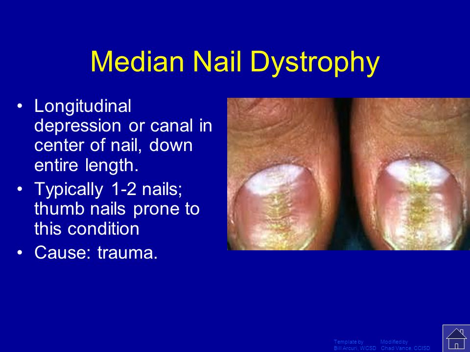 Median Nail Dystrophy Longitudinal depression or canal in center of nail, down entire length.
