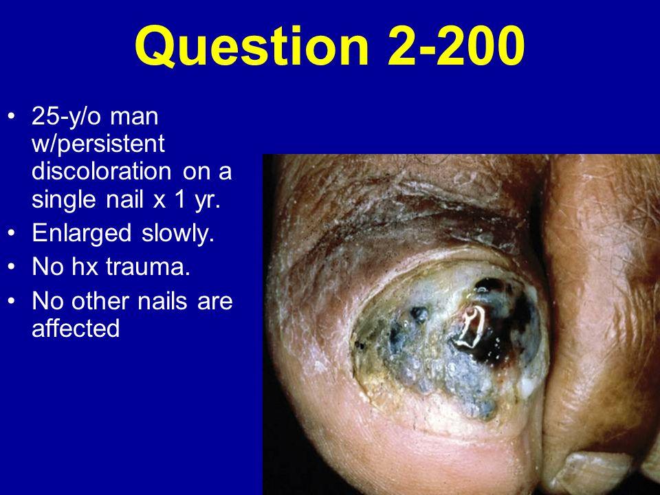 Question 2-200 25-y/o man w/persistent discoloration on a single nail x 1 yr. Enlarged slowly. No hx trauma.