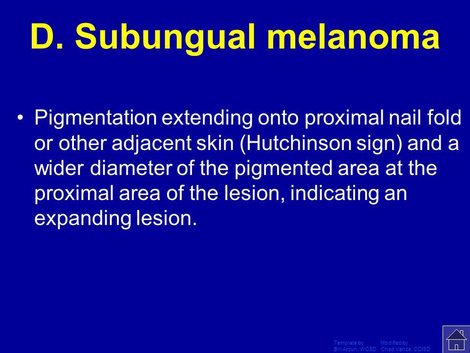 D. Subungual melanoma