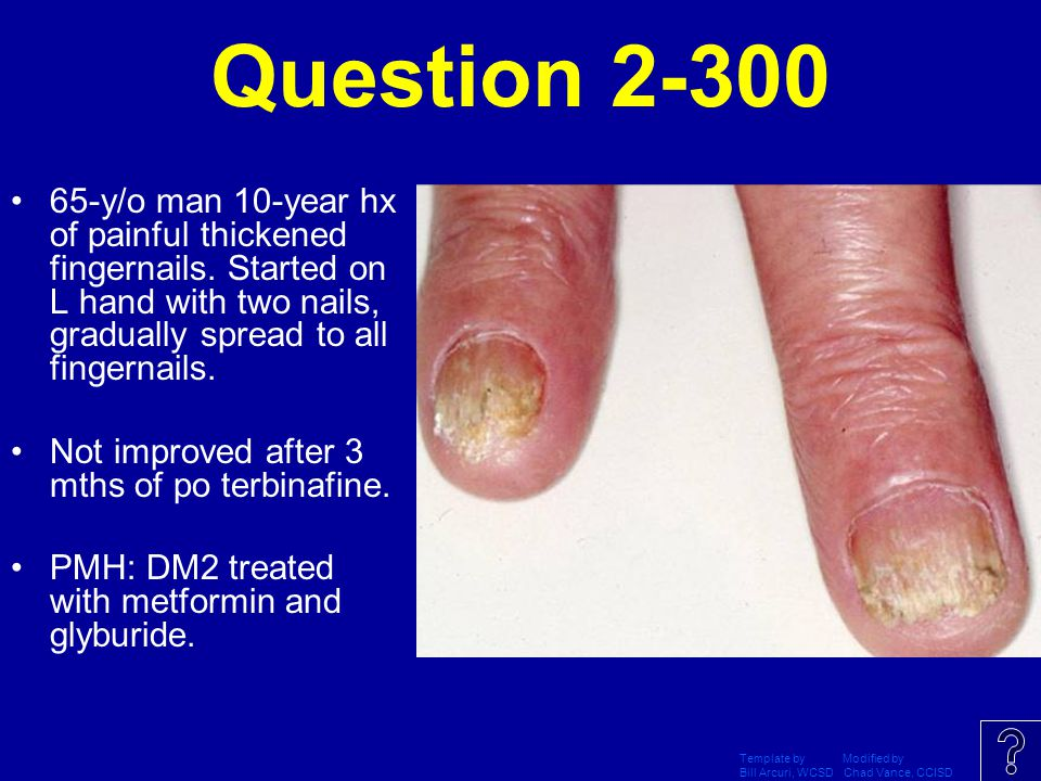 Question 2-300 65-y/o man 10-year hx of painful thickened fingernails. Started on L hand with two nails, gradually spread to all fingernails.