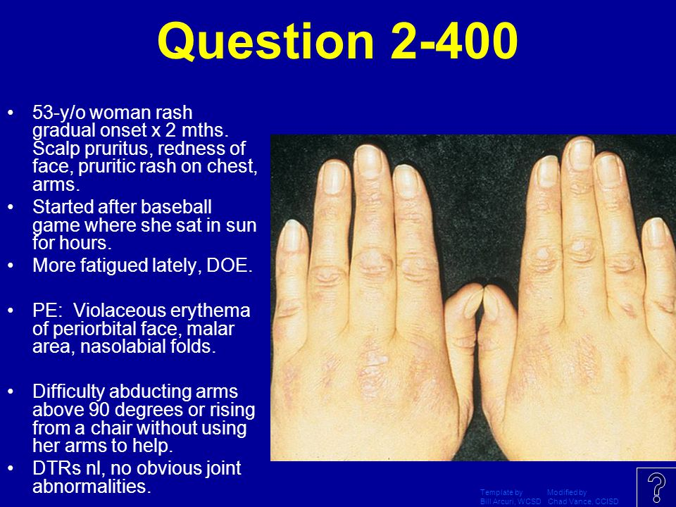 Question 2-400 53-y/o woman rash gradual onset x 2 mths. Scalp pruritus, redness of face, pruritic rash on chest, arms.