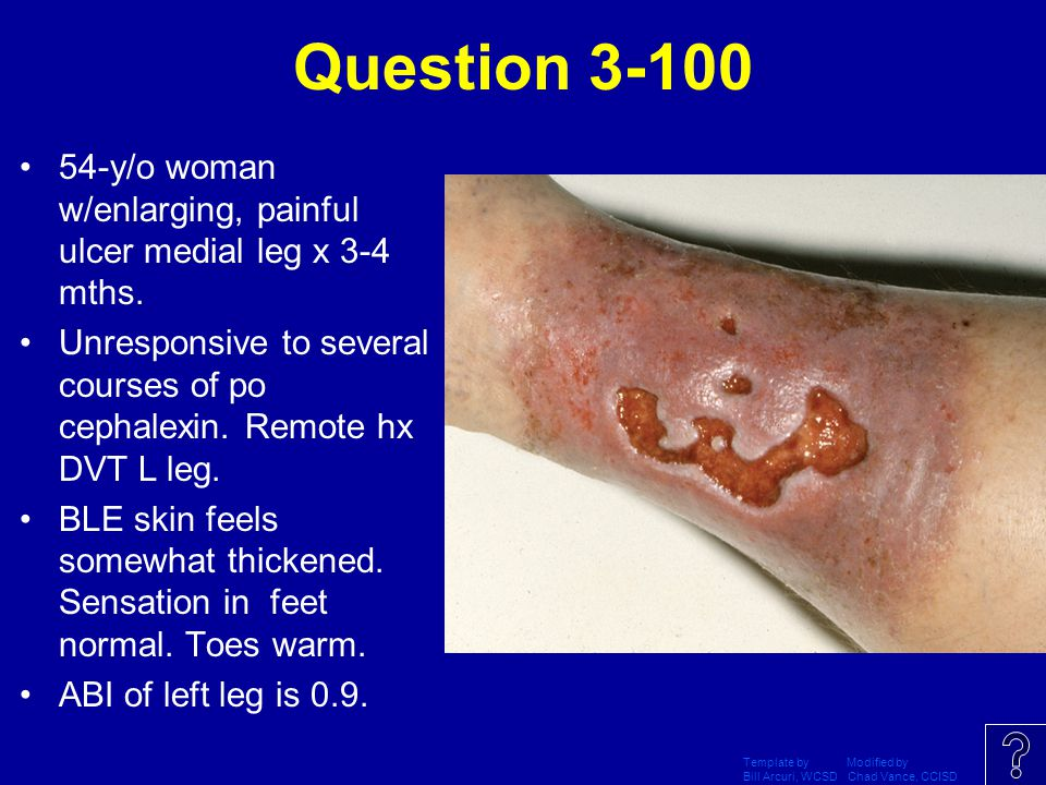 Question 3-100 54-y/o woman w/enlarging, painful ulcer medial leg x 3-4 mths. Unresponsive to several courses of po cephalexin. Remote hx DVT L leg.
