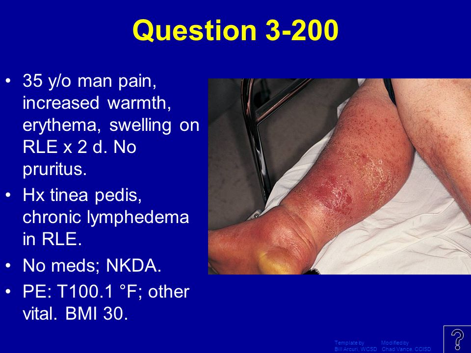 Question 3-200 35 y/o man pain, increased warmth, erythema, swelling on RLE x 2 d. No pruritus. Hx tinea pedis, chronic lymphedema in RLE.
