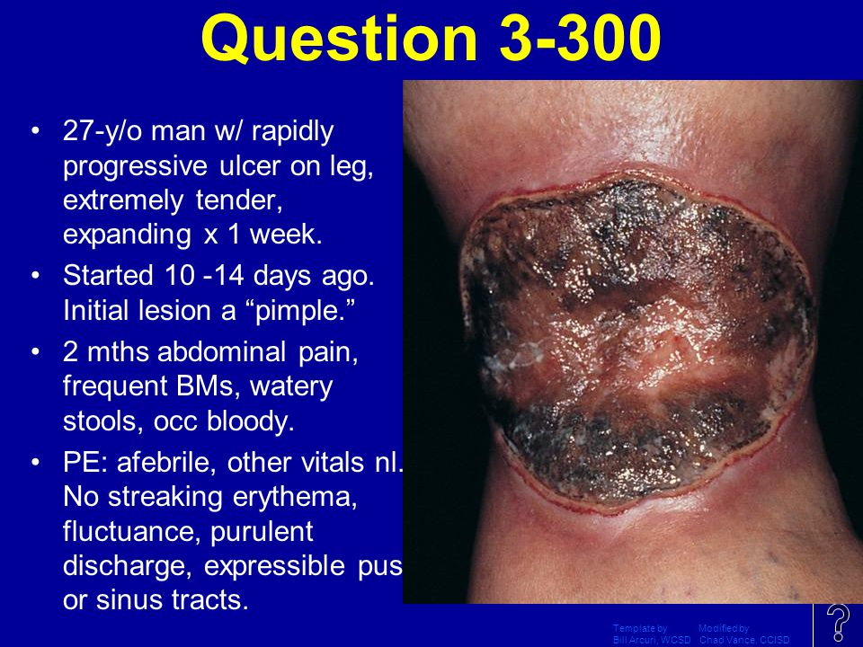 Question 3-300 27-y/o man w/ rapidly progressive ulcer on leg, extremely tender, expanding x 1 week.