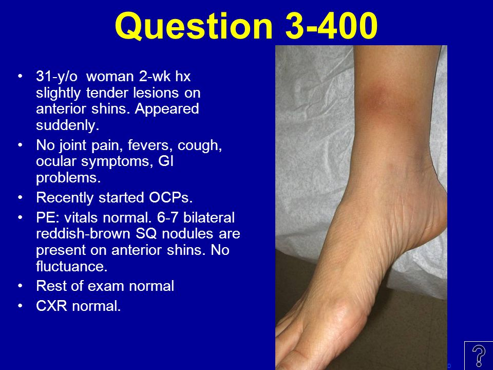 Question 3-400 31-y/o woman 2-wk hx slightly tender lesions on anterior shins. Appeared suddenly.