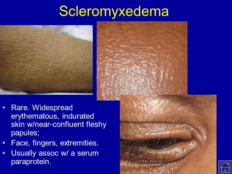 Scleromyxedema Rare. Widespread erythematous, indurated skin w/near-confluent fleshy papules; Face, fingers, extremities.