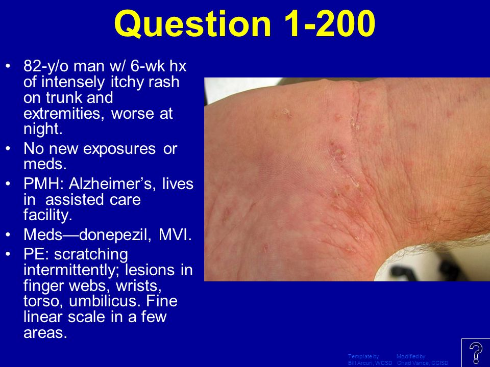 Question 1-200 82-y/o man w/ 6-wk hx of intensely itchy rash on trunk and extremities, worse at night.