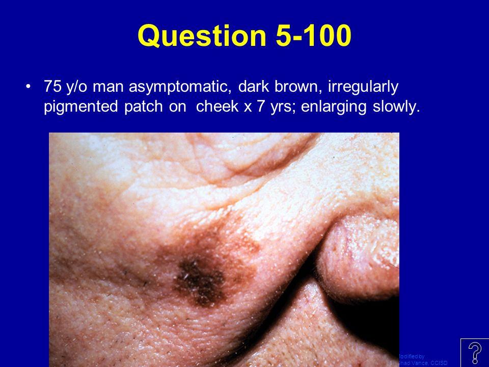 Question 5-100 75 y/o man asymptomatic, dark brown, irregularly pigmented patch on cheek x 7 yrs; enlarging slowly.