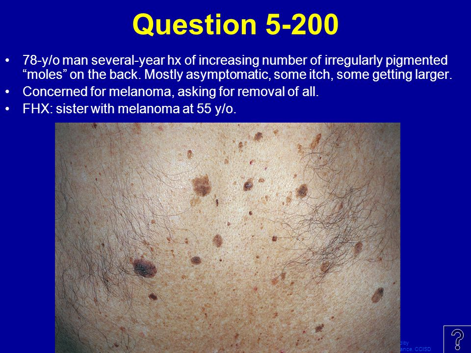 Question 5-200