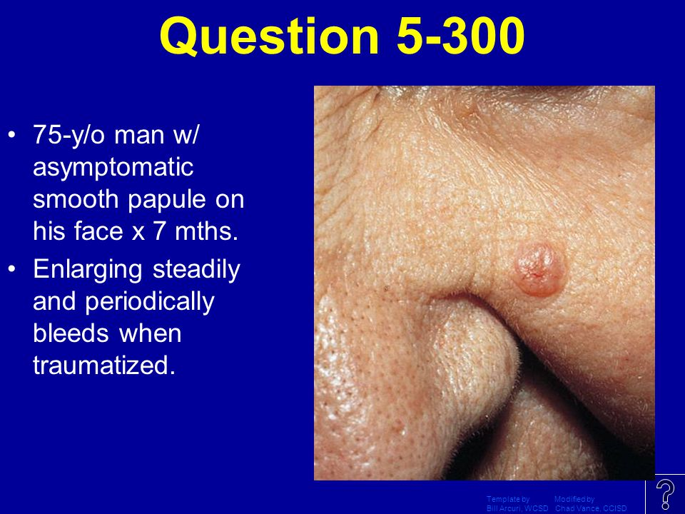 Question 5-300 75-y/o man w/ asymptomatic smooth papule on his face x 7 mths. Enlarging steadily and periodically bleeds when traumatized.