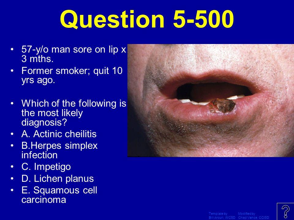 Question 5-500 57-y/o man sore on lip x 3 mths.