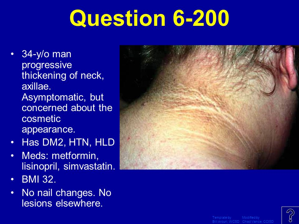 Question 6-200 34-y/o man progressive thickening of neck, axillae. Asymptomatic, but concerned about the cosmetic appearance.