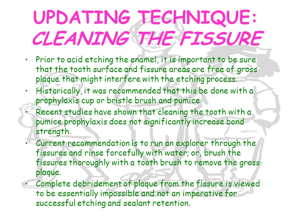 UPDATING TECHNIQUE: CLEANING THE FISSURE