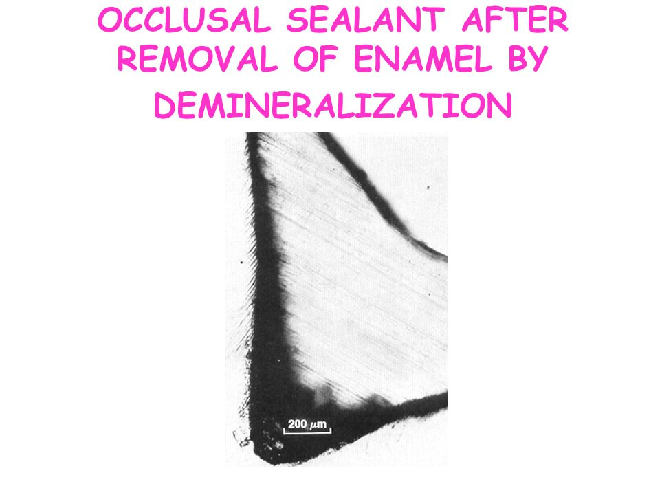 OCCLUSAL SEALANT AFTER REMOVAL OF ENAMEL BY DEMINERALIZATION