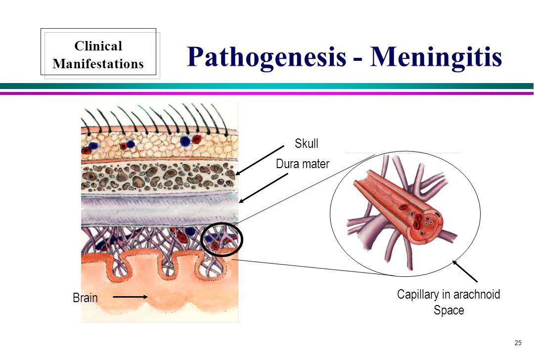 Pathogenesis - Meningitis