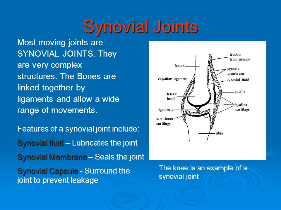 Synovial Joints Most moving joints are SYNOVIAL JOINTS. They