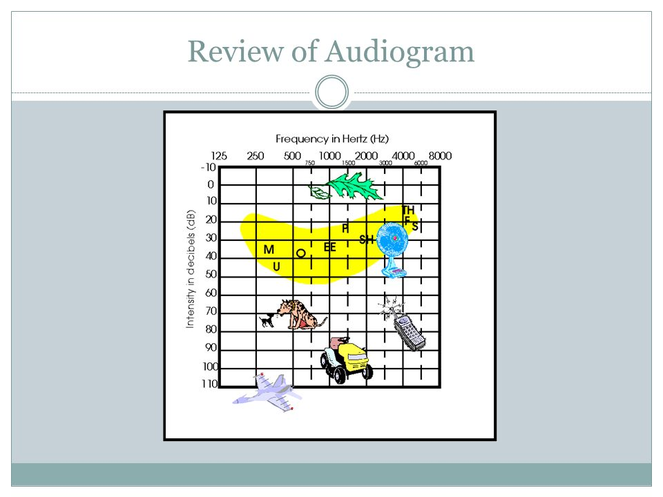 Review of Audiogram