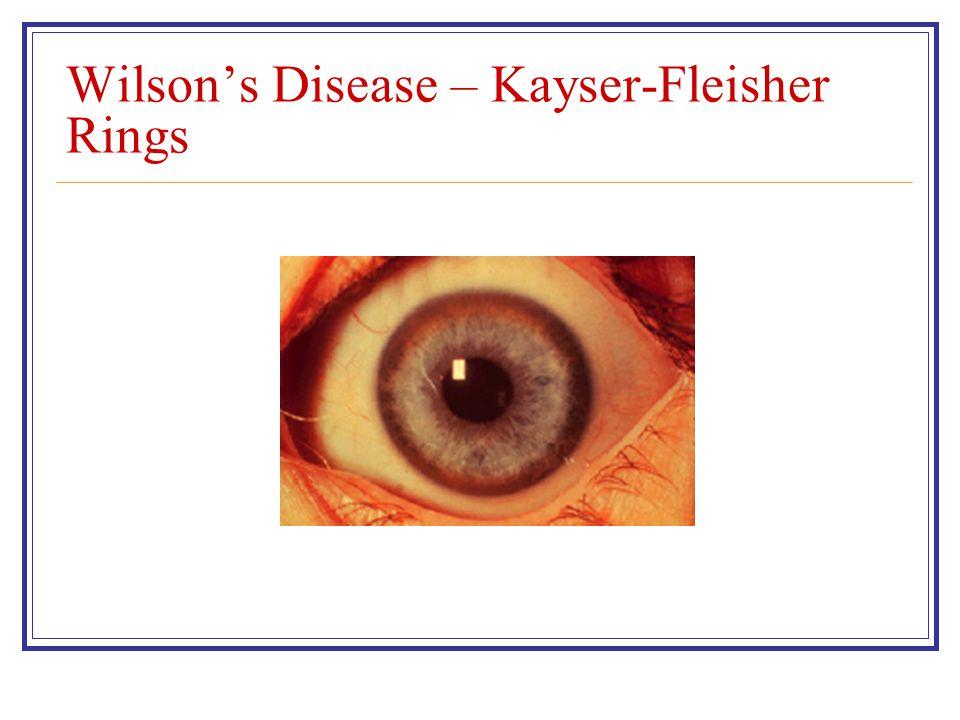 Wilson's Disease – Kayser-Fleisher Rings
