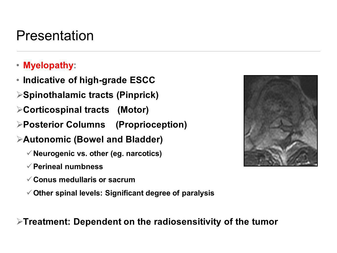 Presentation Myelopathy: Indicative of high-grade ESCC