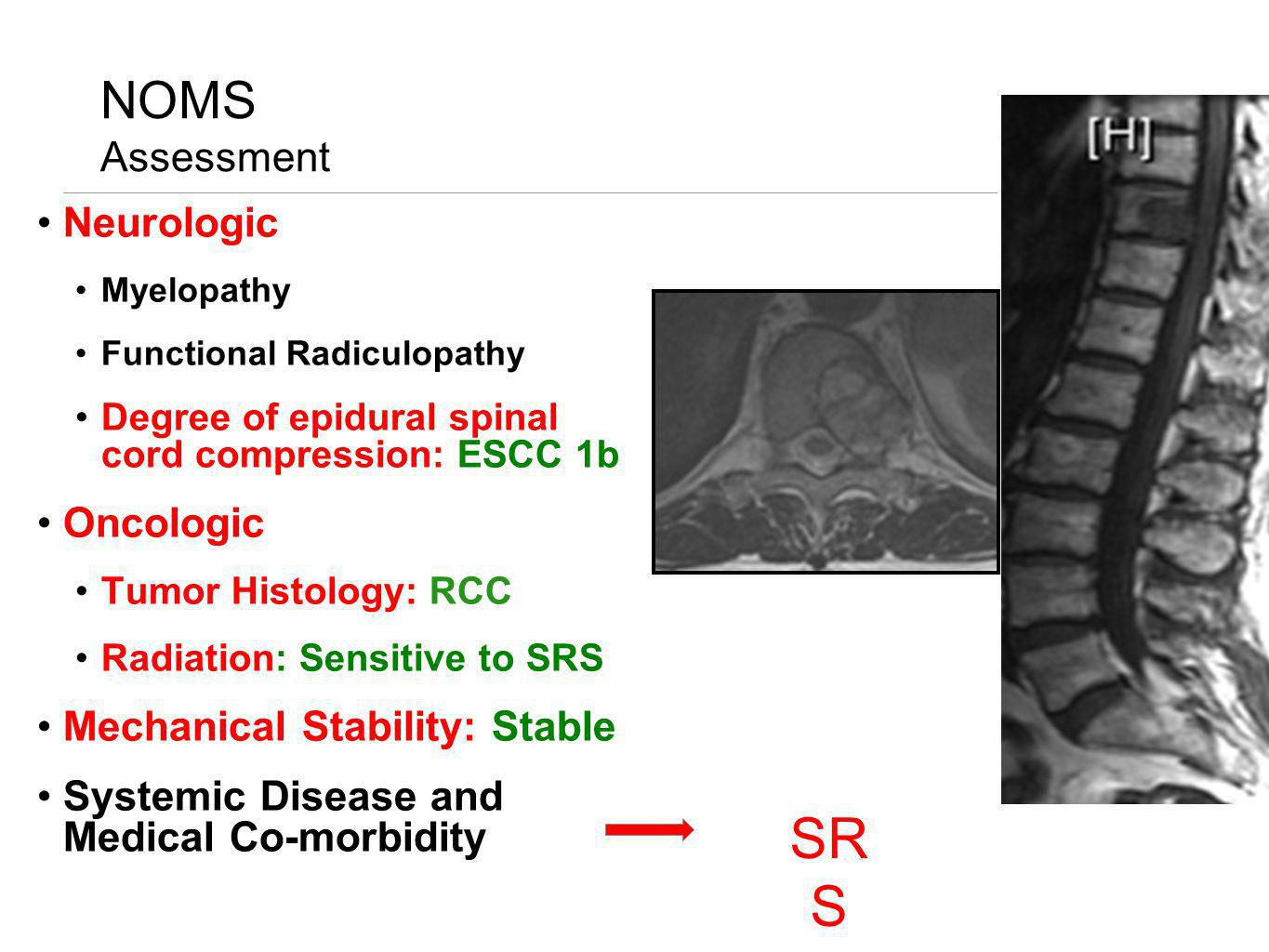 SRS NOMS Assessment Neurologic Oncologic Mechanical Stability: Stable