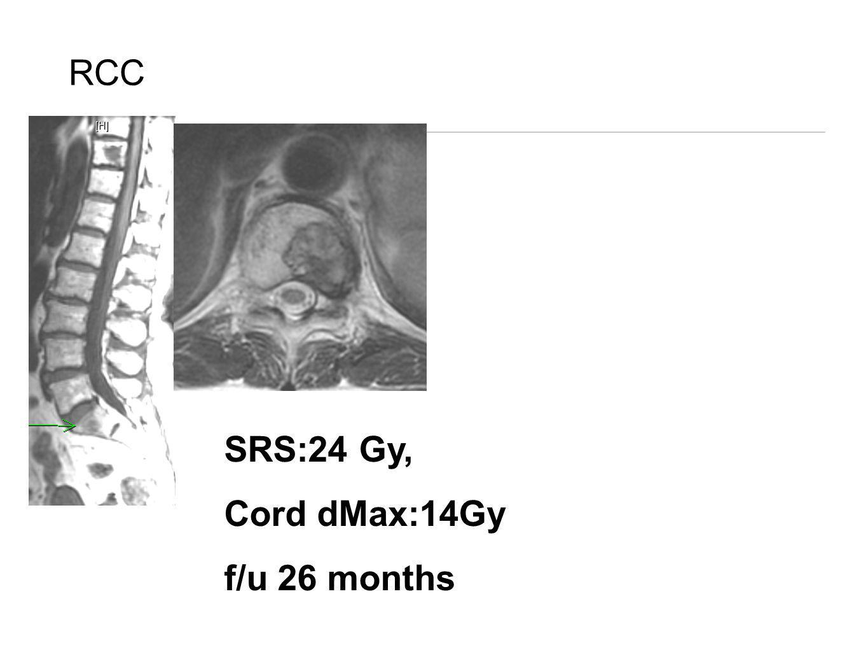 RCC SRS:24 Gy, Cord dMax:14Gy f/u 26 months