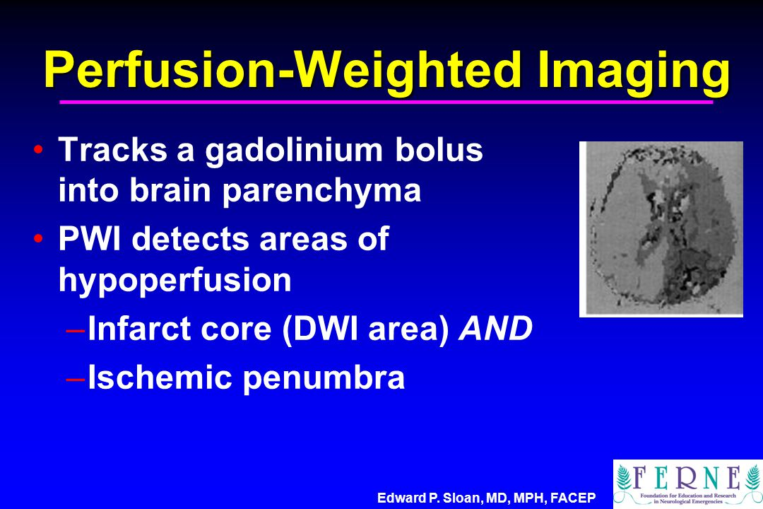 Perfusion-Weighted Imaging