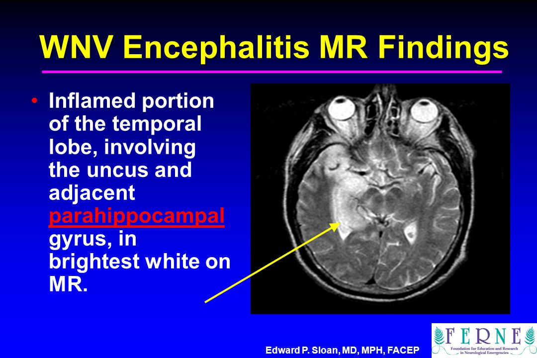 WNV Encephalitis MR Findings