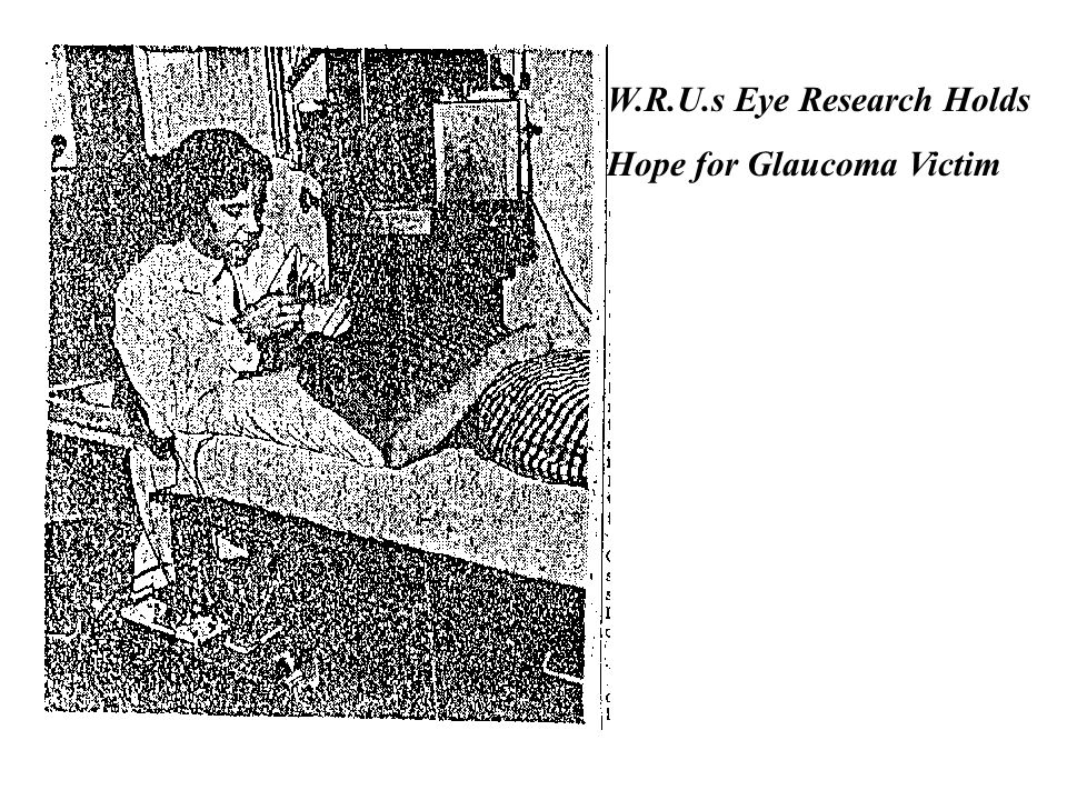 W.R.U.s Eye Research Holds