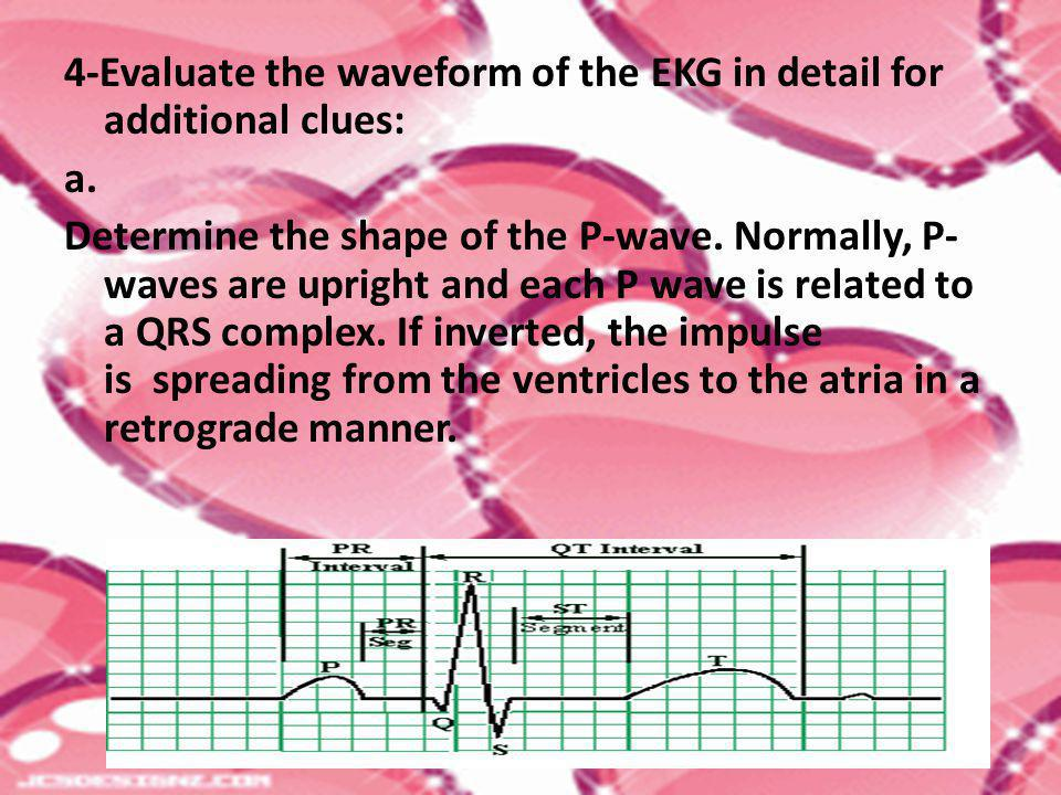 4-Evaluate the waveform of the EKG in detail for additional clues: a