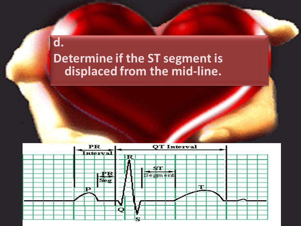 d. Determine if the ST segment is displaced from the mid-line.