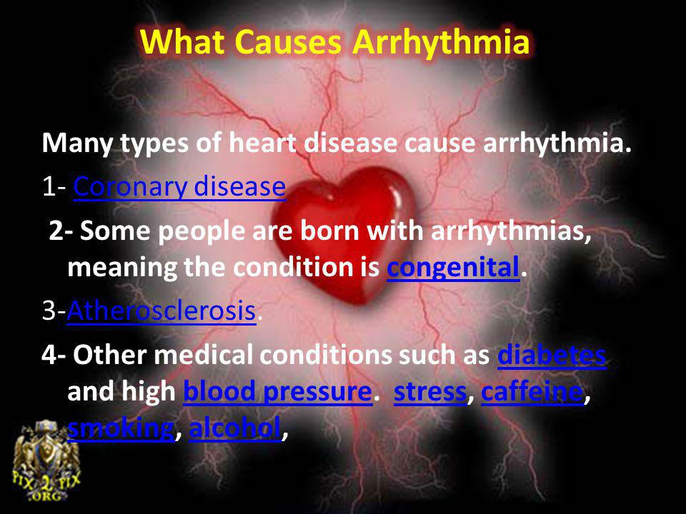 What Causes Arrhythmia