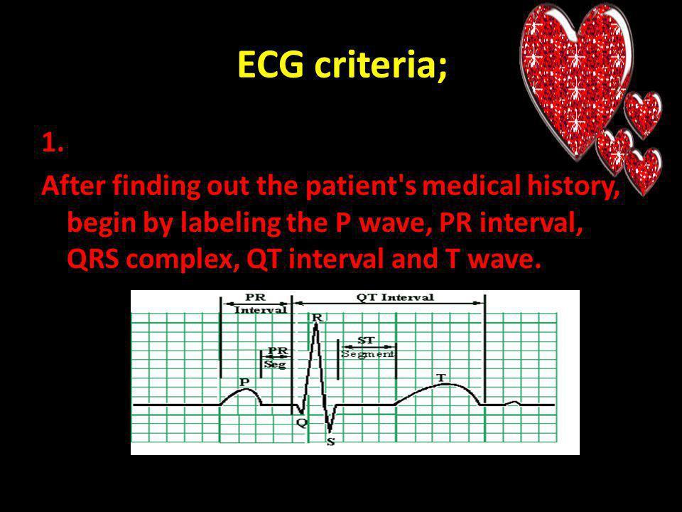 ECG criteria; 1.