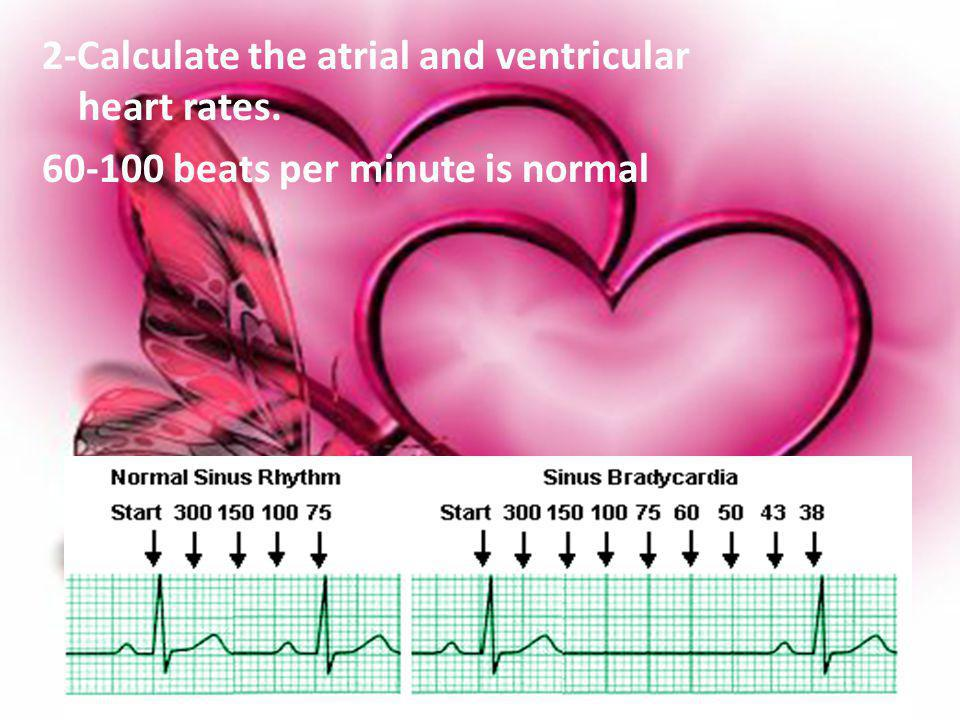 2-Calculate the atrial and ventricular heart rates