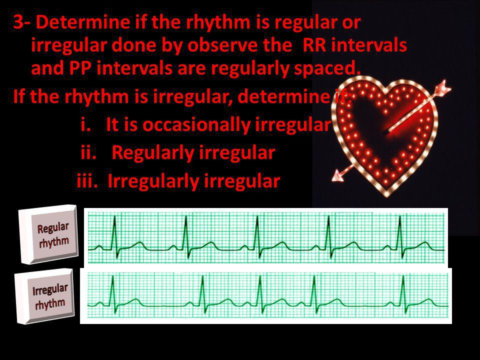 3- Determine if the rhythm is regular or irregular done by observe the RR intervals and PP intervals are regularly spaced.