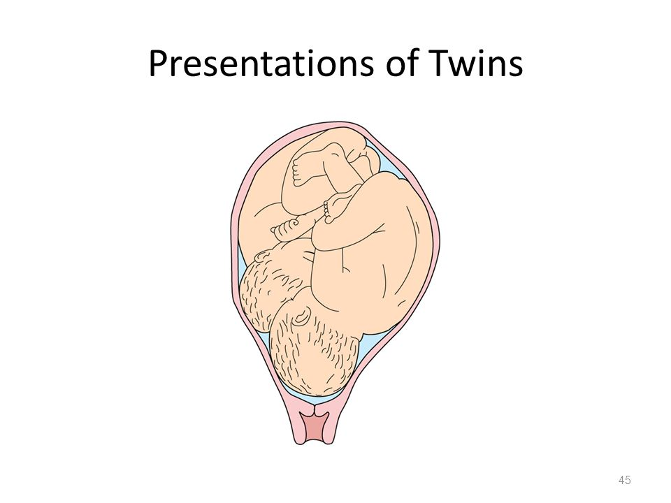 Presentations of Twins