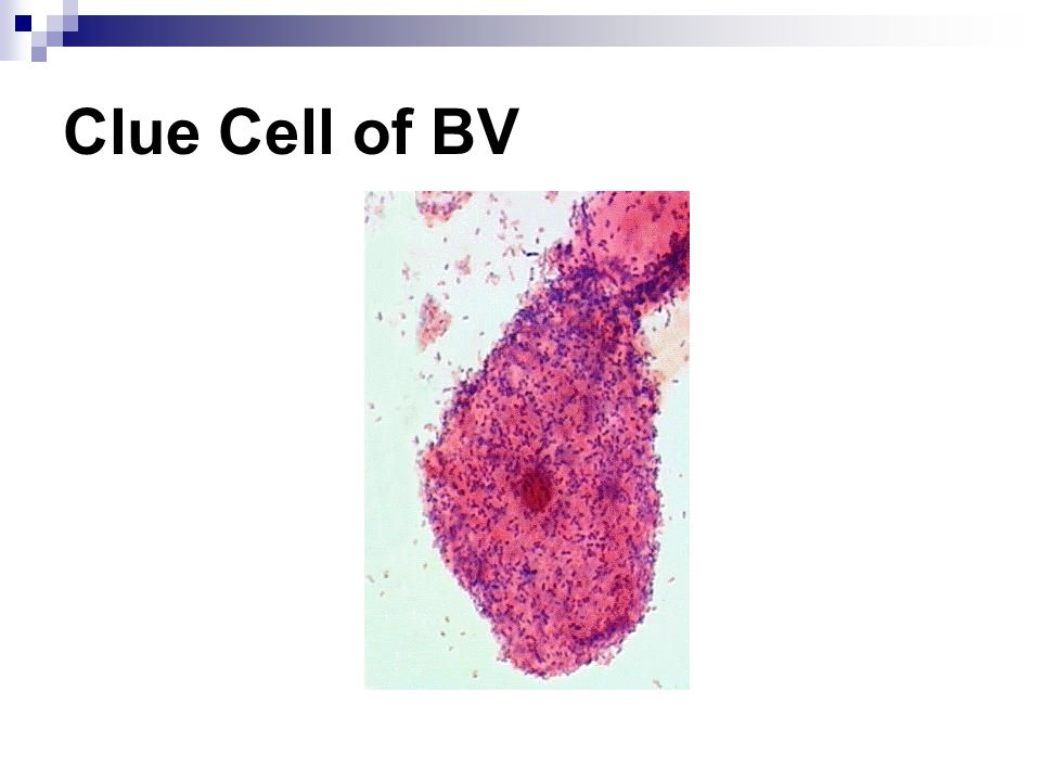 Clue Cell of BV